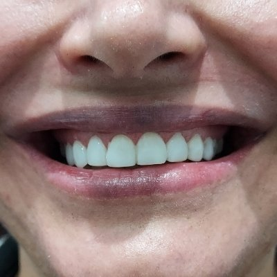 1 After Pearly Whites Dental