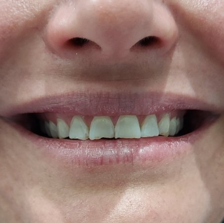 1 Before Pearly Whites Dental