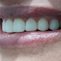 2 After Pearly Whites Dental