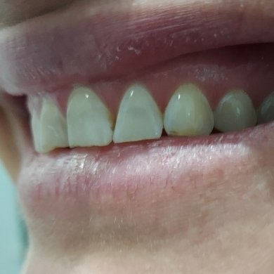 2 Before Pearly Whites Dental
