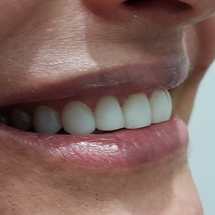 3 After Pearly Whites Dental