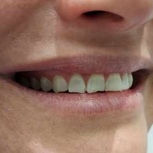 3 Before Pearly Whites Dental