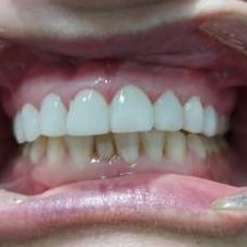 4 After Pearly Whites Dental