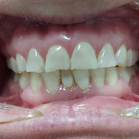 4 Before Pearly Whites Dental
