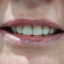 5 After Pearly Whites Dental