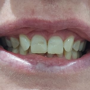 5 Before Pearly Whites Dental