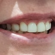6 After Pearly Whites Dental