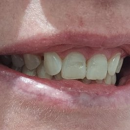 Pearly Whites Dental